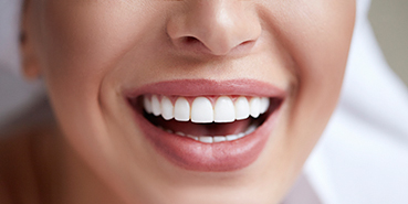 Mississauga Cosmetic Dentist