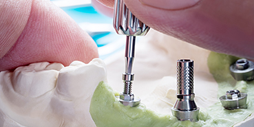 Dental Implants in Mississauga