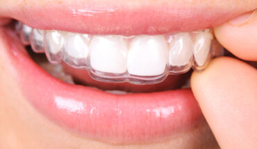 A Complete Guide to Invisalign