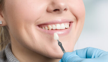 What Can Cosmetic Dentistry Do?