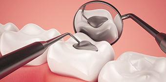 Silver or White Dental Fillings – Which Should You Choose?