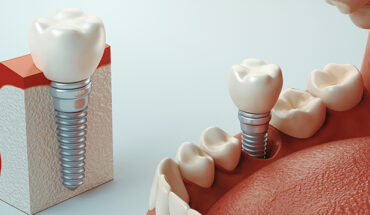 A Complete Guide to Dental Implants
