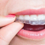 Important Questions to Ask Your Dentist About Invisalign