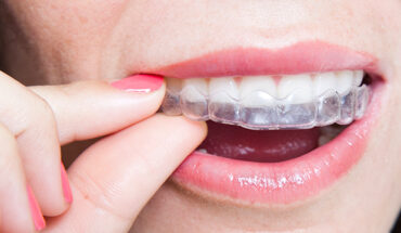 10 Questions to Ask Your Dentist About Invisalign