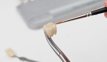 A Complete Guide to Dental Crowns for Oral Care